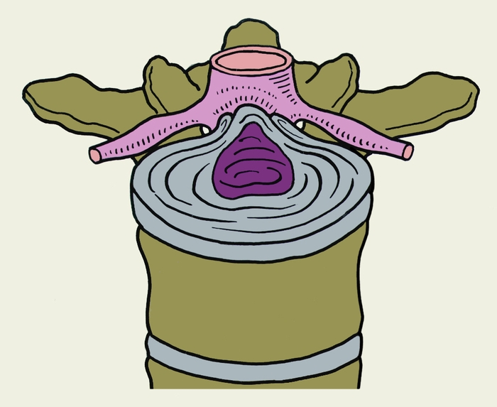 Рис. 4а). Схематическое изображение топографических вариантов грыж межпозвоночных дисков, направленных в спинномозговой канал, в поясничном отделе позвоночника при остеохондрозе: срединная