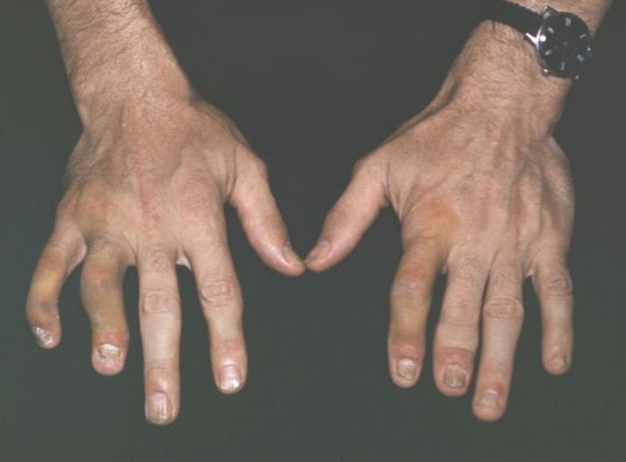 revmatoidniy-artrit-i-psoriaz
