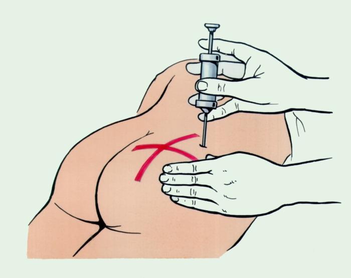 Инъекция Прямая Интрацитоплазматическая