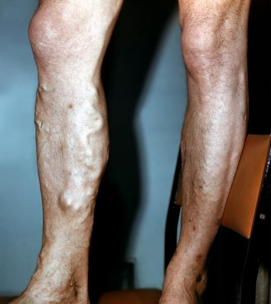 Лечение аромамаслами варикоза