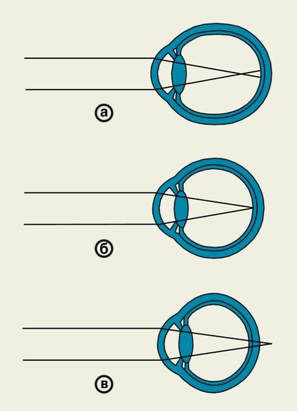 Как исправить зрение если уже носишь очки