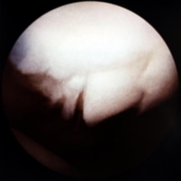...Переломе суставной поверхности надколенника.  Рис. 15.