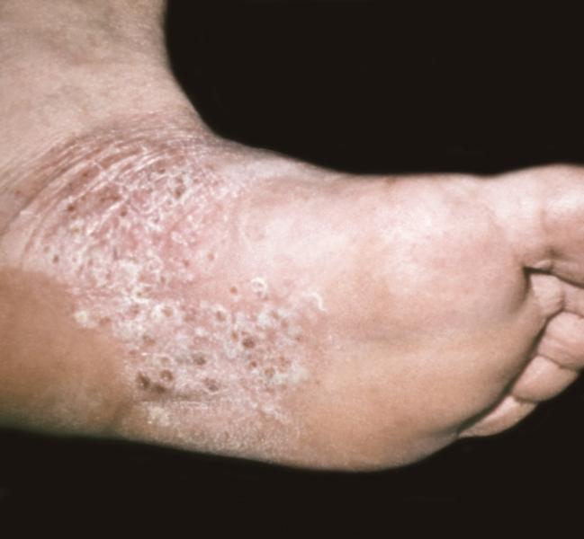 Чистая кожа Программа поддержки пациентов с псориазом