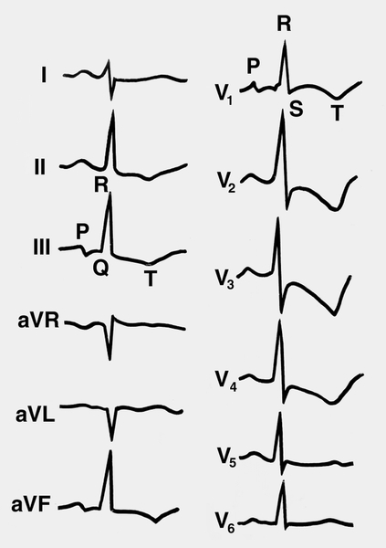Электрокардиограмма при