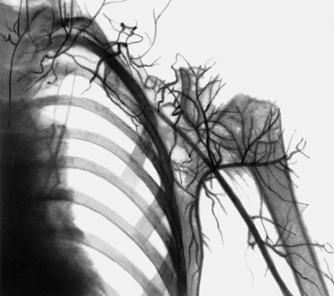 Остеолиз фото