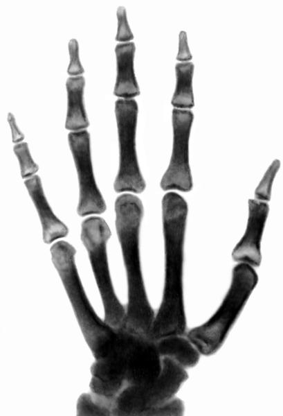 Немного о сцинтиграфии костей