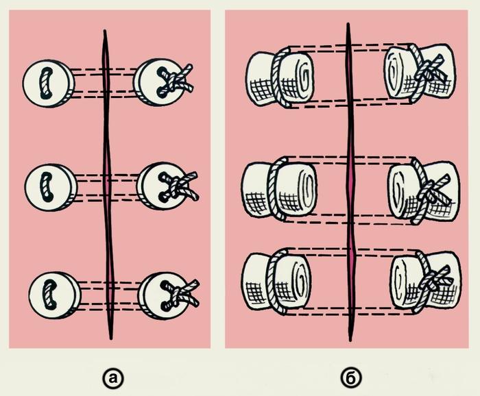 Рис. 11. Схематическое изображение пластинчатых П-образных швов: а — на пуговицах; б — на марлевых шариках