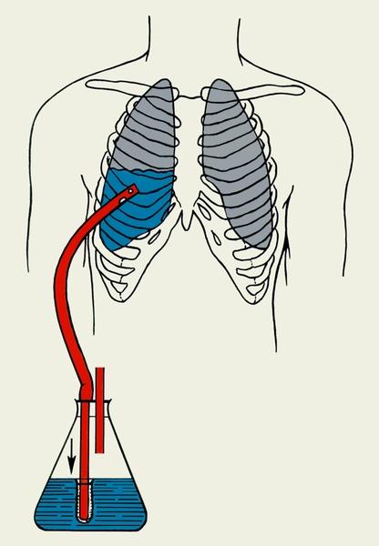 Схема дренирования плевральной