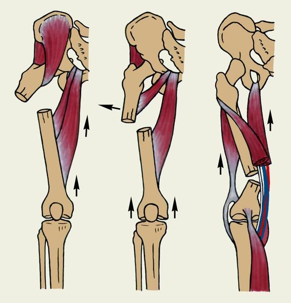 Рис. 5. Схематическое изображение типичных смещений отломков бедренной кости в зависимости от уровня перелома. Стрелками показаны направления смещения, обусловленные тягой мышц.