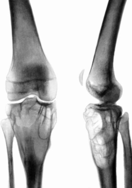 киста большеберцовой кости лечение