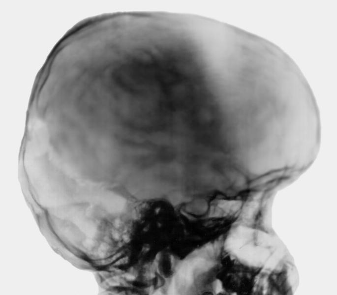 Рентген при внутричерепном давлении