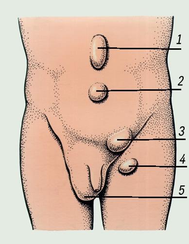 Рис. 1. Схема расположения наиболее часто встречающихся наружных грыж живота: 1 - грыжа белой линии живота; 2...
