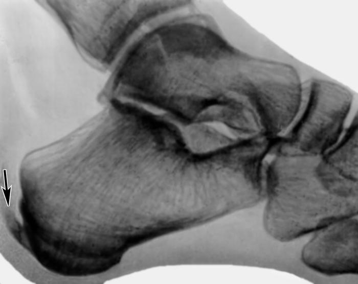 Рентгенограмма правого плечевого сустава (прямая проекция) при...