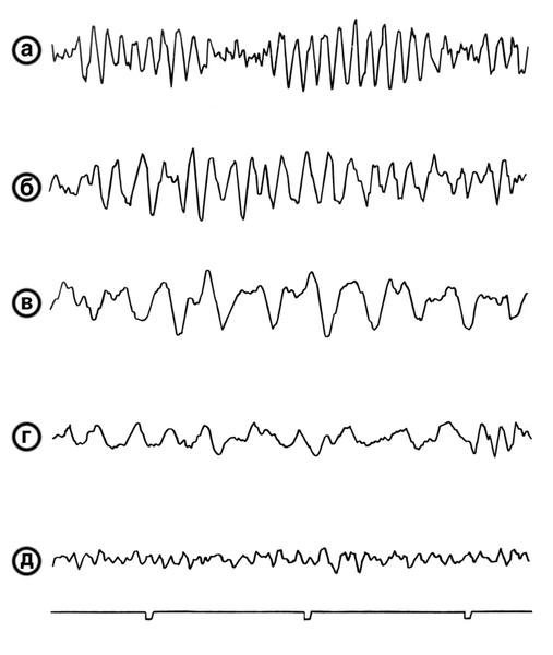 Фибрилляция желудочков сердца - это... Что такое Фибрилляция ...
