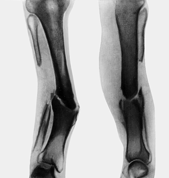 Как лечат ложные суставы лфк при остеоартрозе коленных суставов видео