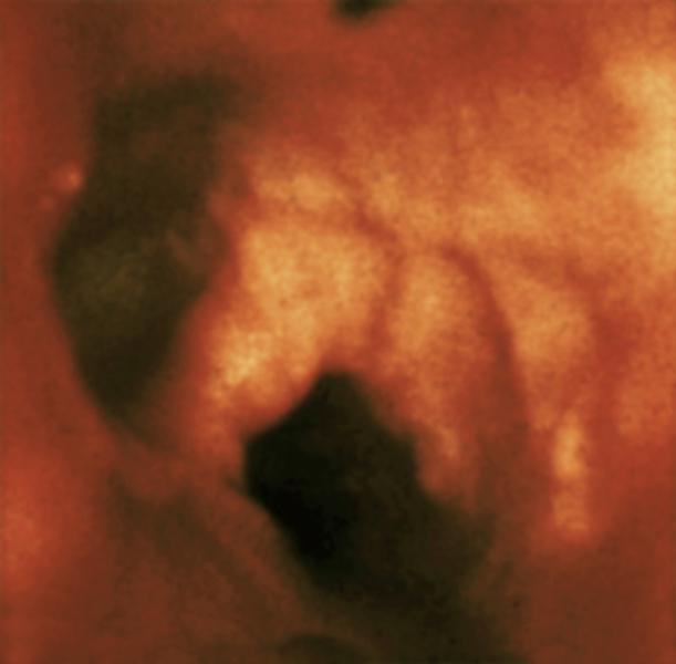 Почему после кормления болят молочные железы