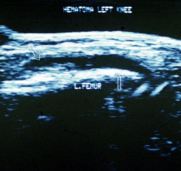Рис. 25. Ультрасонограмма левого коленного сустава (продольный медиальный парапателлярный срез) при гемартрозе: стрелка слева указывает на скопление жидкости, стрелка справа на параоссальную гиперэхогенную структуру