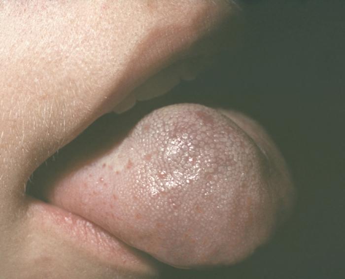 Макроглоссия I фото