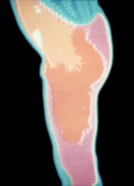 Рис. 15в). Термограмма ягодичной области при болезни Пертеса в начальной стадии (боковая проекция): увеличена теплопродукция области левого тазобедренного сустава