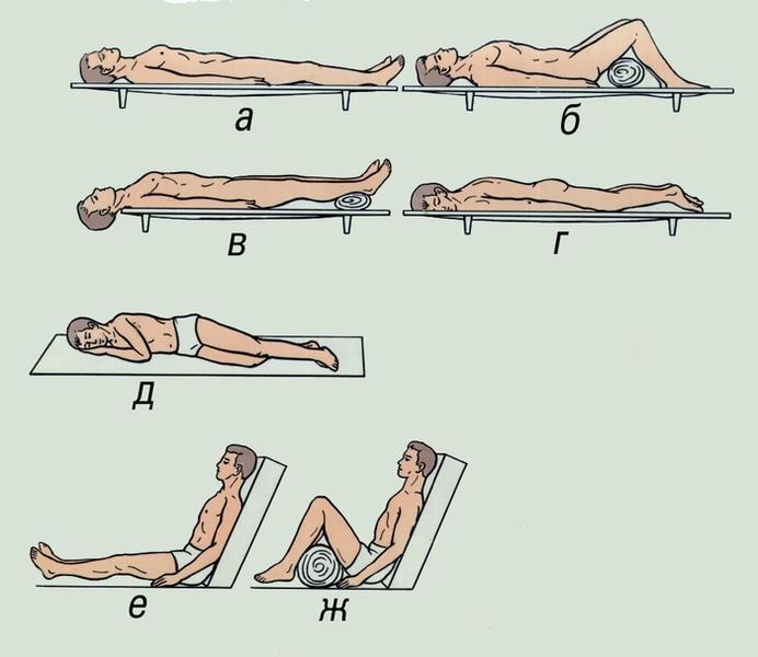 Рис. 6. Положение пострадавшего при транспортировке: а — на спине; б — на спине с ногами, согнутыми в коленных суставах; в — на спине с приподнятыми нижними конечностями и опущенной головой; г — на животе; д — фиксированно-стабилизированное положение на боку; е — положение полусидя; ж — то же с ногами, согнутыми в коленных суставах.