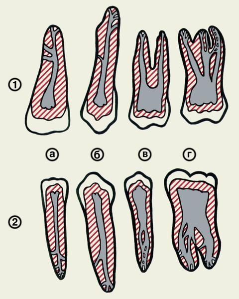 Стирание зуба у ребенка