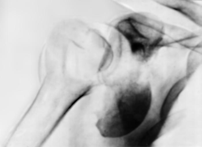 ...поверхности головки плечевой кости находится вне суставной впадины у...