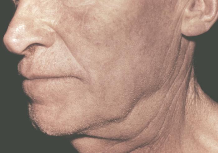 Красная щетка и выпадение волос