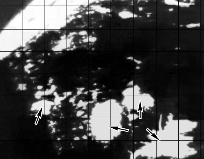 Рис. 2е). Ультразвуковая сканограмма печени при различных видах патологии: <a href=