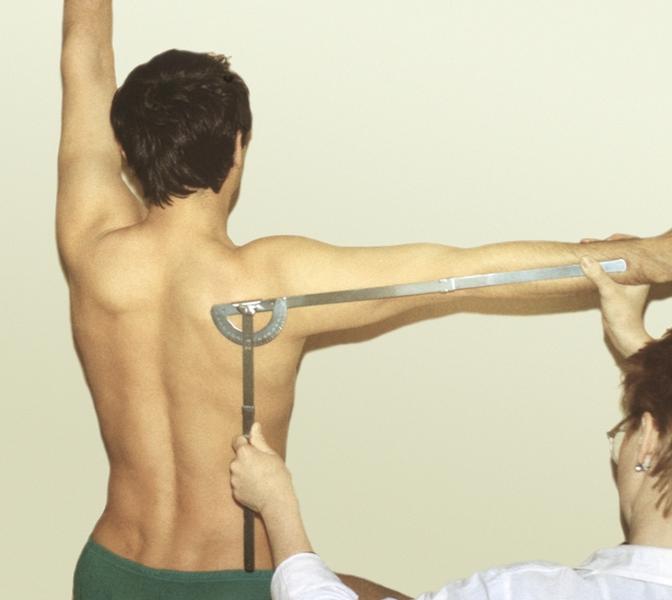 Рис. 5б). Измерение с помощью гониометра амплитуды отведения в плечевом суставе с участием пояса верхних конечностей: одна бранша гониометра установлена параллельно оси позвоночника, а другая — вдоль оси плеча; левая рука больного поднята вверх, что исключает участие в движении грудного отдела позвоночника