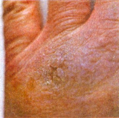аллергия на фоне