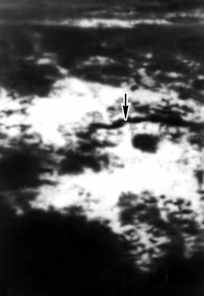 Рис. 6в). Ультразвуковые сканограммы поджелудочной железы при хроническом панкреатите: стрелкой указан расширенный <a href=