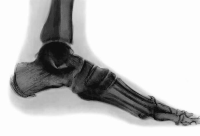 Остеоартропатия фото
