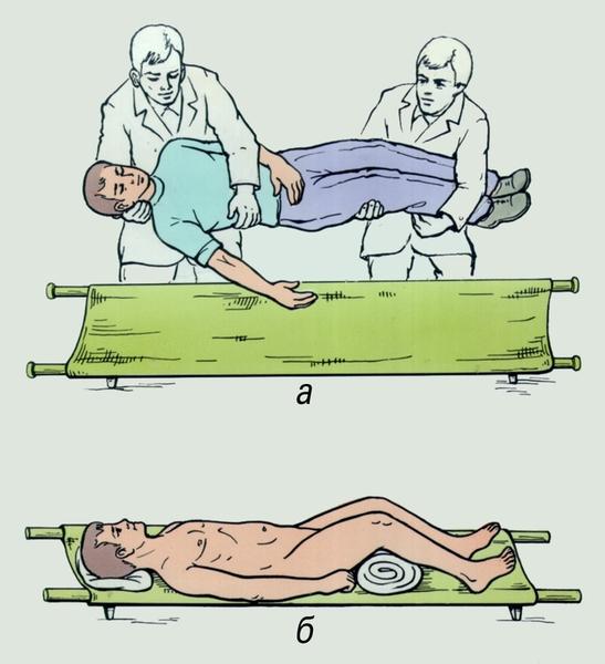 переломом костей таза для