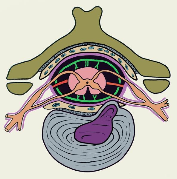 Рис. 3. Схематическое изображение грыжи межпозвоночного диска в шейном отделе позвоночника при остеохондрозе: грыжевое выпячивание направлено в сторону спинномозгового канала