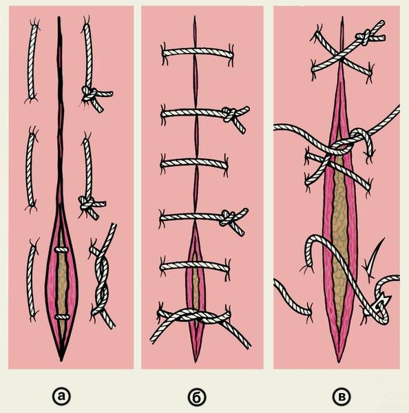 Рис. 5. Схематическое изображение вариантов петлистых узловых швов: а — П-образный выворачивающий шов; б — П-образный вворачивающий шов; в — 8-образный шов