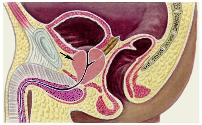 Питание при раке простаты с метастазами