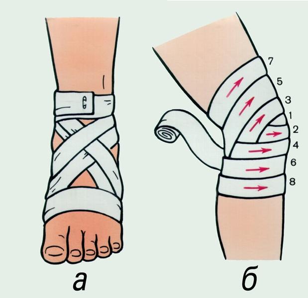 Наложение повязки на правый коленный сустав мазм от боли в суставах