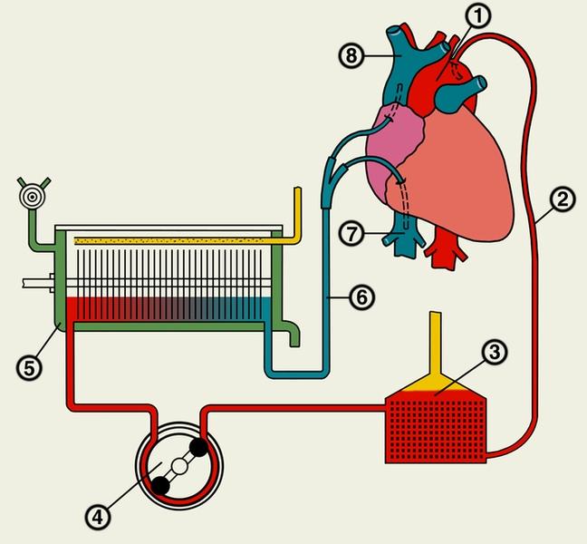 Схема подключения аппарата