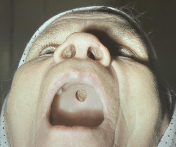 признаки сифилиса во рту