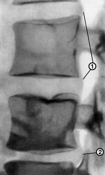 Рис. 9в). Пневмомиелограмма при остеохондрозе позвоночника (боковая проекция): протрузия двух соседних межпозвоночных дисков (1) и задняя грыжа (2) нижерасположенного диска