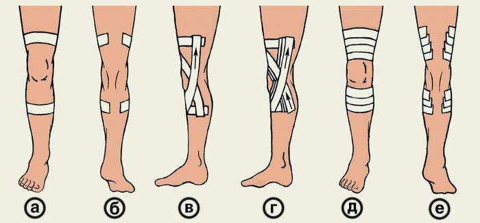 связок коленного сустава:
