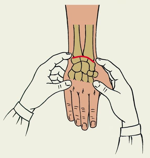 Область лучезапястного сустава работа мышц при выполнении движений с участием множества суставов