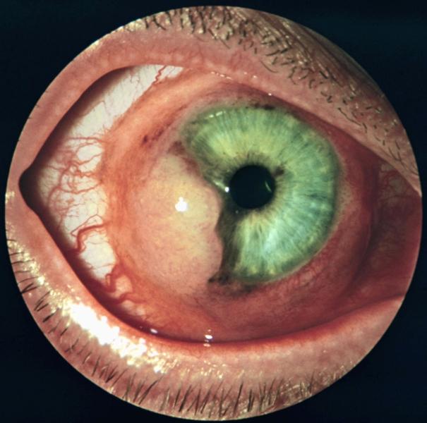 трансплантация роговицы глаза фото