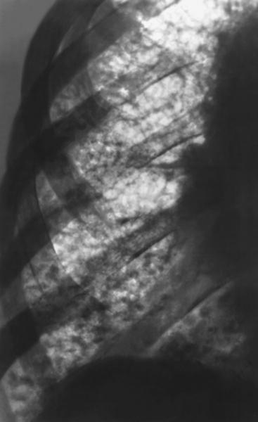Главная.  Рис. 5. Фрагмент рентгенограммы грудной клетки...