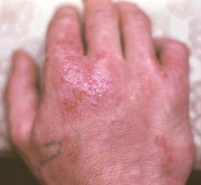 контактная аллергия спортивную защиту