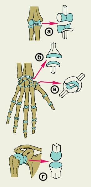 Рис. 1. Схематическое изображение суставов с различной формой суставных поверхностей: а — блоковидный сустав; б — эллипсовидный сустав; в — седловидный сустав; г — шаровидный сустав