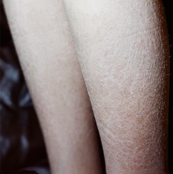 ихтиоз кожи у детей фото