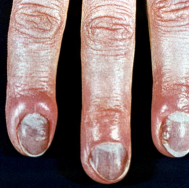 Отек и гипермия ногтевых валиков при кандидамикозе.  Версия для печати. на всю ширину экрана / посередине...