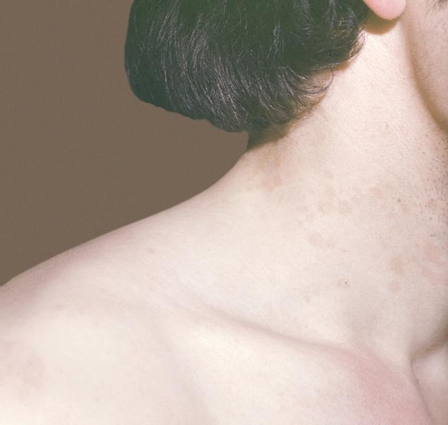 Рис. 1. Мелкие розовато-желтоватые пятна на боковой поверхности шеи при отрубевидном лишае