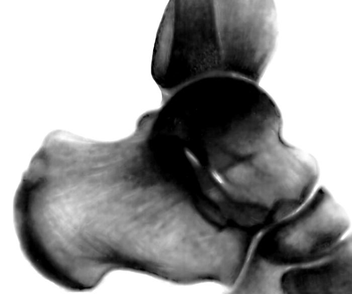 Косточка на большом пальце ноги причины и лечение